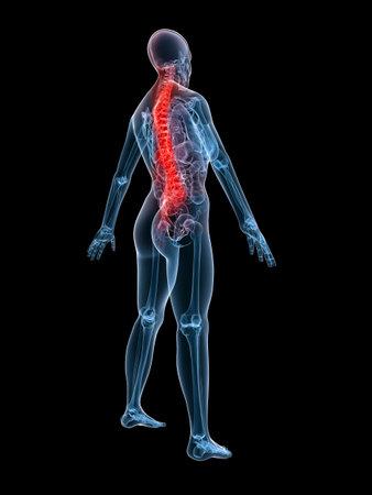 backache: human skeleton with backache