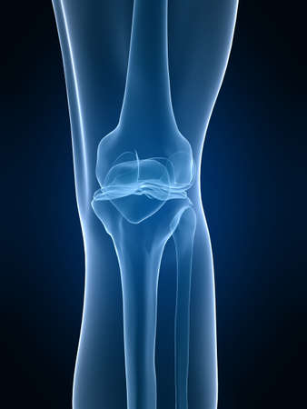 x-ray knee photo