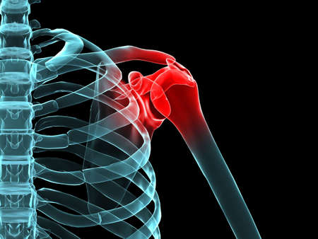 painful: x-ray painful shoulder Stock Photo