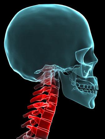 painful: x-ray painful neck