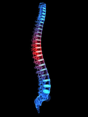 x-ray painful spine