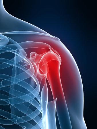 dolor en el pecho: inflamaci�n del hombro