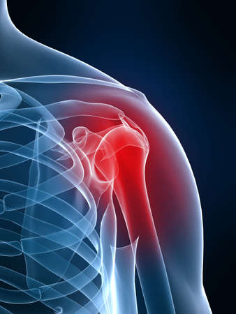 shoulder inflammation Stock Photo - 2873950