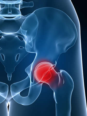 hip joint pain: hip inflammation
