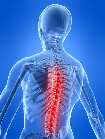 ray: human skeleton with painful back Stock Photo