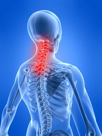 x ray skeleton: neck inflammation