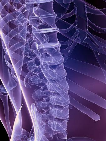 osteoporosis: 3d columna vertebral