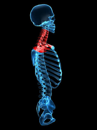 x rays: x-ray torso with painful neck