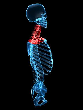 chest x ray: x-ray tronco con doloroso collo