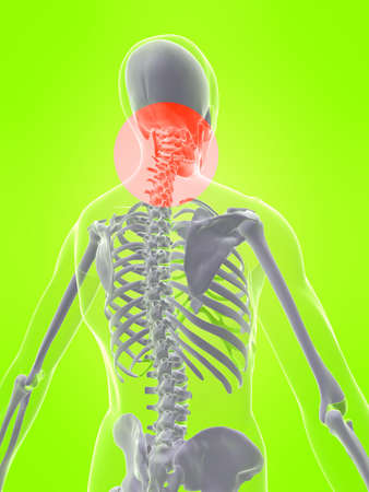skeleton with painful neck photo