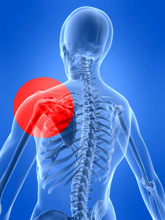 inflammation: shoulder inflammation