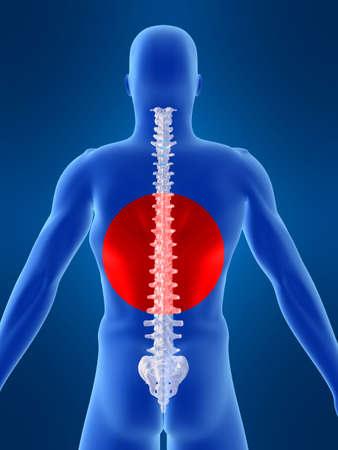 body shape: forma del corpo, con dolorose della colonna vertebrale