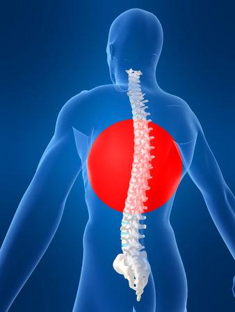 body shape: forma del corpo con la spina dolorosa