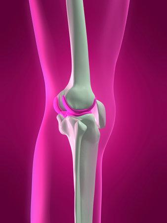 osteoporosis: esqueleto humano rodilla - vista lateral