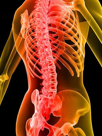 scheletrico indietro con dolore