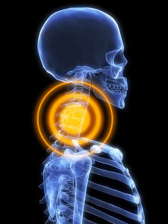 skeletal neck with pain photo