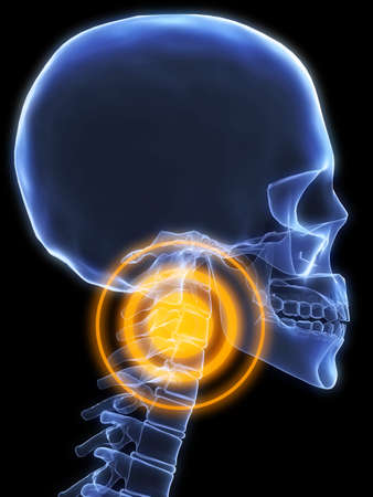 neck pain: skeletal neck with pain
