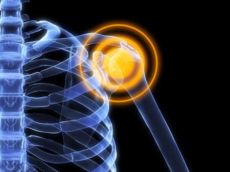 skeletal shoulder with pain photo