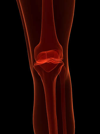 x-ray - skeletal knee photo