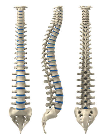 spine surgery: different views of a human spine Stock Photo