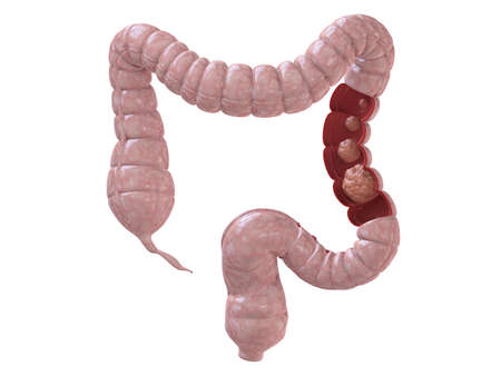 colon cancer Stock Photo - 3196304