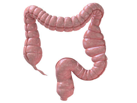 intestines: obstipation