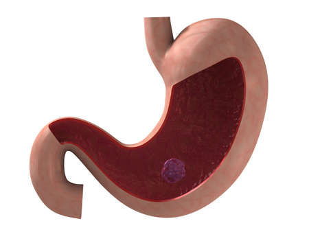sphincter: stomach ulcer Stock Photo