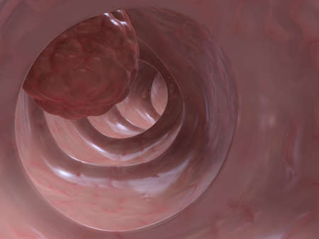 colon cancer photo