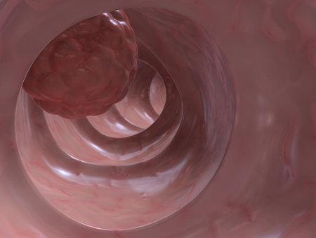 d�tection: le cancer du c�lon