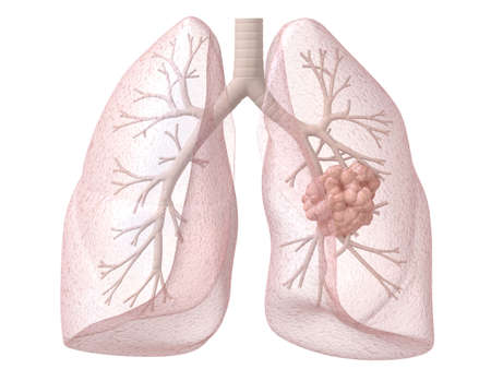 colon cancer: lung cancer