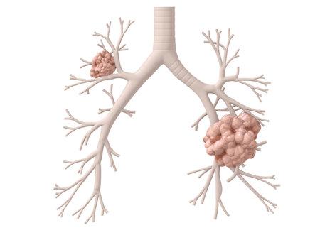 lungenkrebs: Lungenkrebs