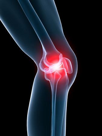 de rodillas: rodilla dolorosa  Foto de archivo