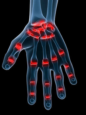 painful: painful hand joints