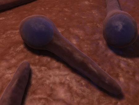 microscopy: tetanus bacteria