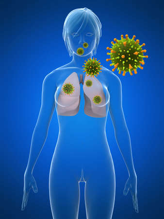 lung infection Stock Photo - 3241285