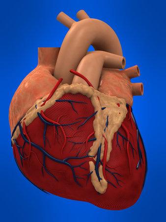 clogged: human heart
