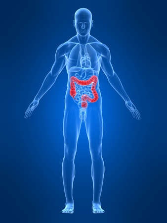 syndrome: transparent male body with highlighted colon