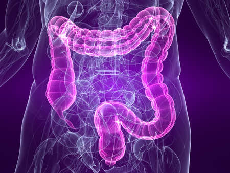 bowel: highlighted colon