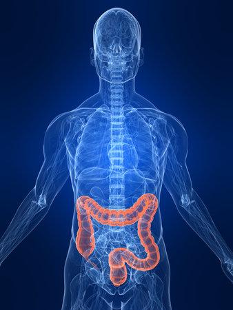 intestines: destac� colon