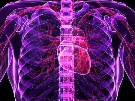 inflammated: human heart