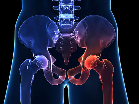 huesos: humanos doloroso de cadera