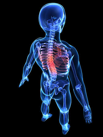 chest pain: human skeleton with painful back Stock Photo