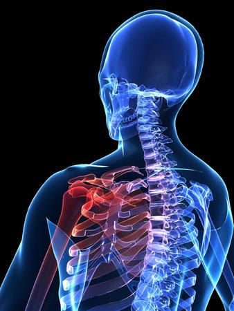 painful human shoulder photo
