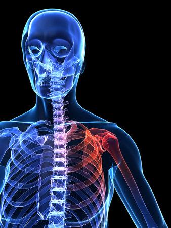 painful: painful human shoulder
