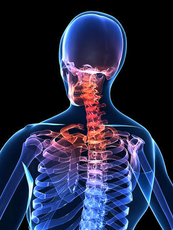 skeletal: painful human neck