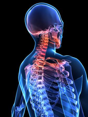 neck�: dolor de cuello humano Foto de archivo