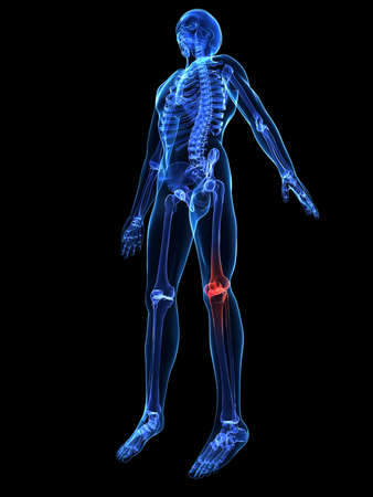 esqueleto humano: esqueleto humano con la rodilla dolorosa