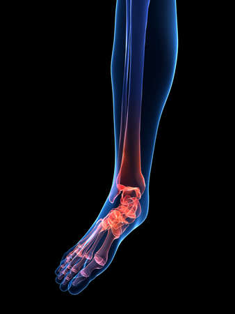 bones of the foot: painful ankle