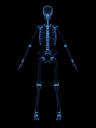 radiografía del esqueleto humano Foto de archivo - 4716078