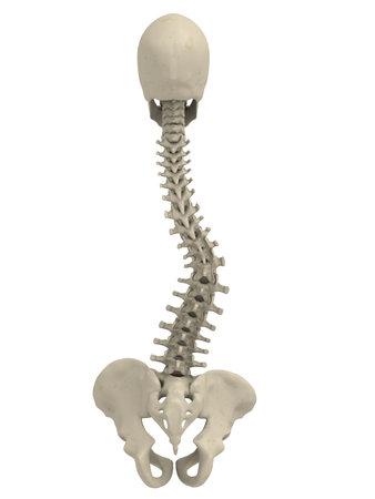 osteoporosis: escoliosis